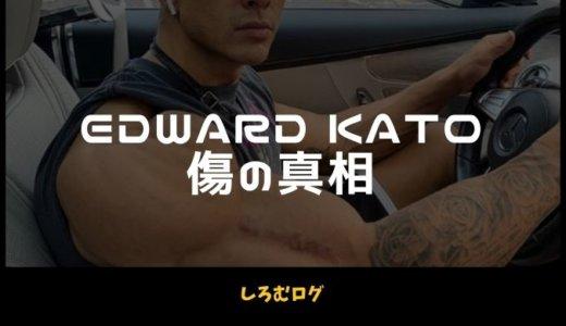 【傷までカッコイイ】エドワード加藤の右腕の傷の真相